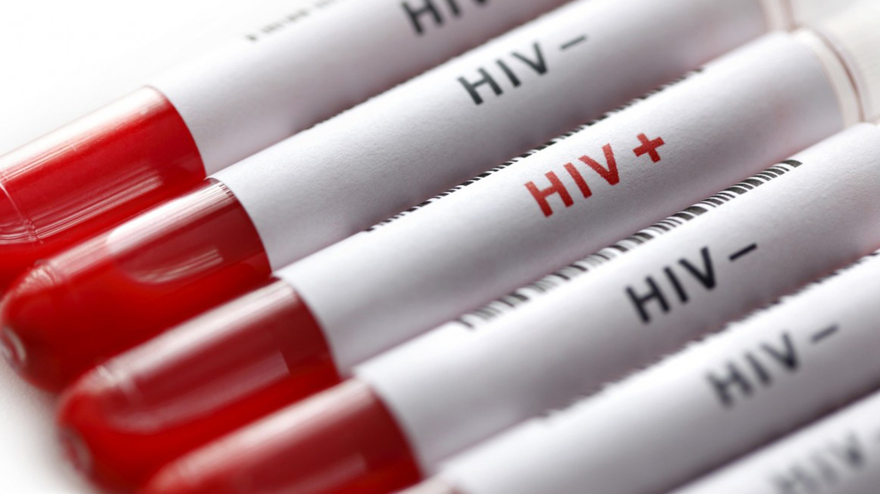 Cure for HIV AIDS HIV Antibody Research at PlantForm gets Funding from U.S. National Institutes of Health