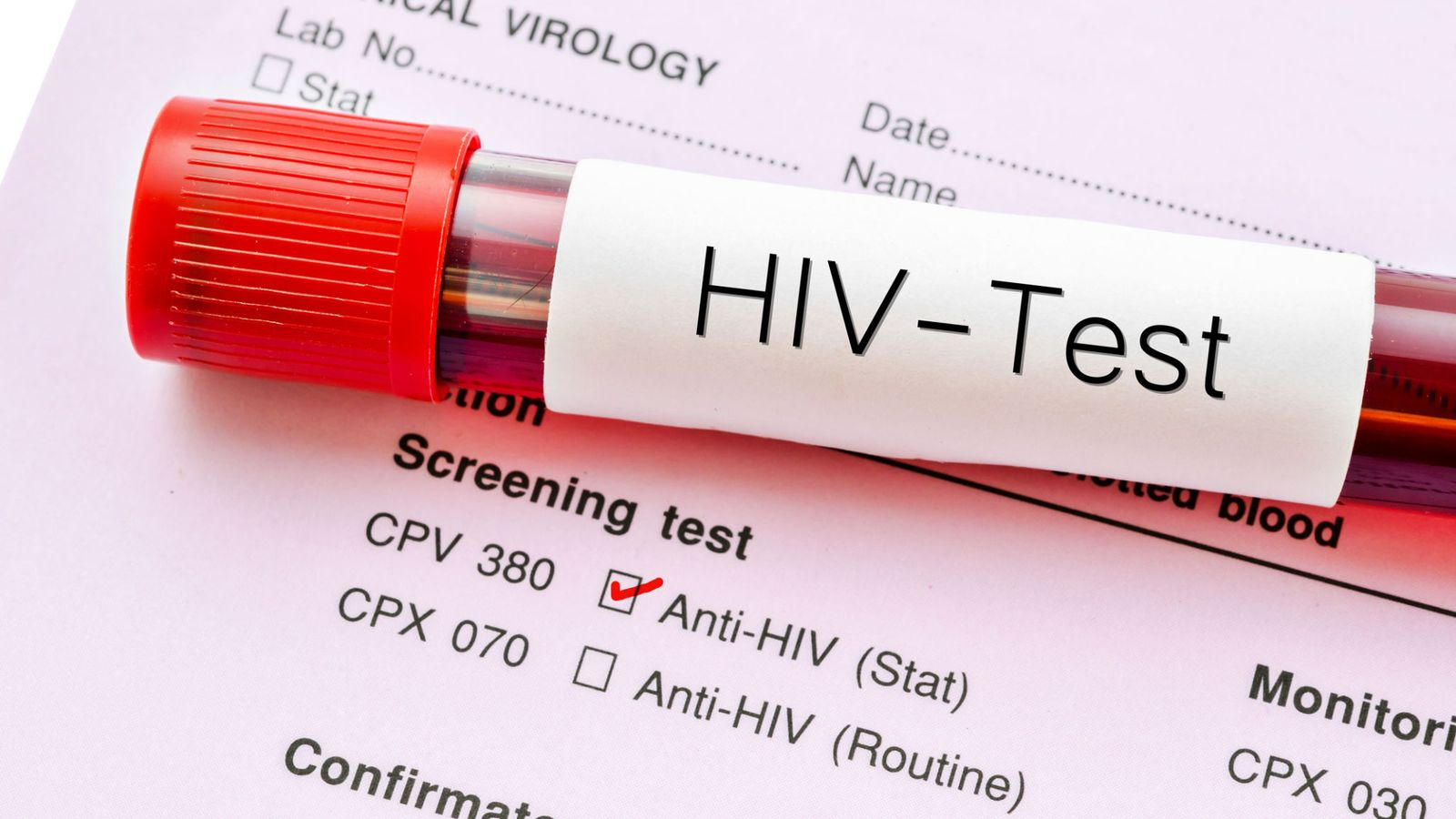 Cure for HIV AIDS New Treatment to Flush out the Virus can Cure the Disease