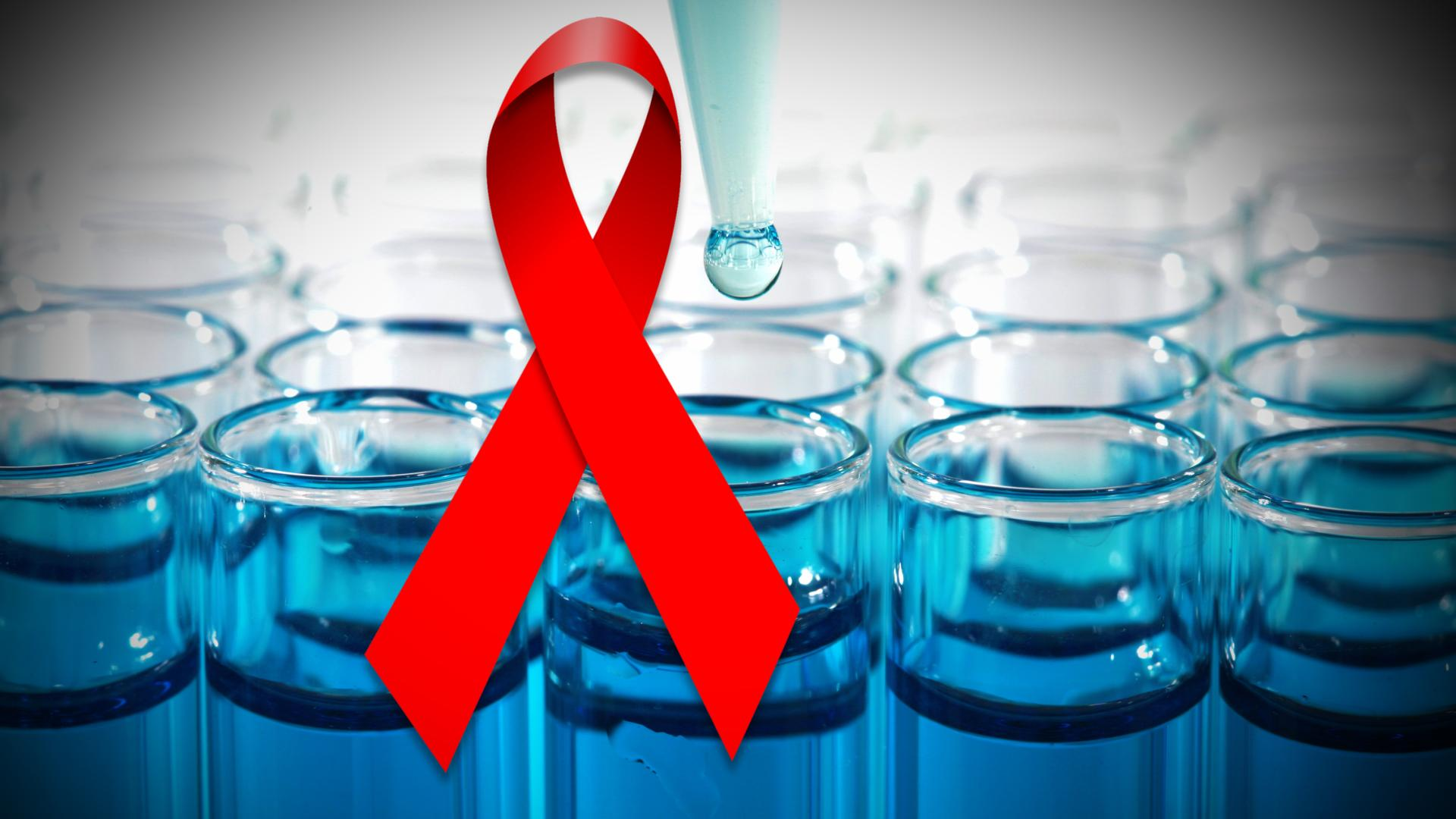 Cure for HIV AIDS North Carolina Researchers are Very Close to Finding Permanent HIV Cure