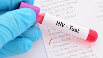 Cure for HIV AIDS Sex-based Treatment will Work as HIV is Different in Men and Women