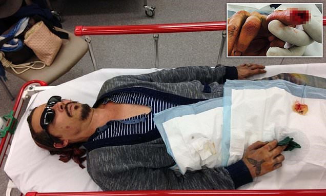 Johnny Depp releases photo of his severed finger